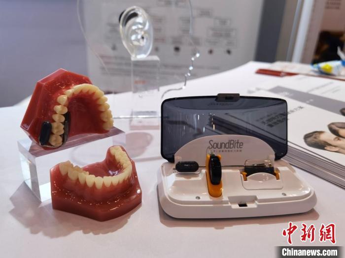 牙骨传导为听力重建领域注入活力 专家呼吁尽早干预术后深圳助孕听力问题